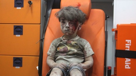 A Wounded Child In Aleppo, Silent And Still, Shocks The World | Regional Geography | Scoop.it