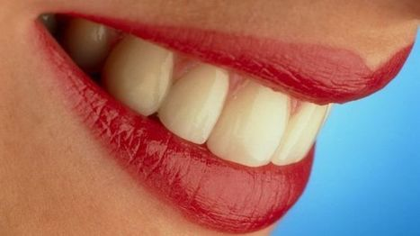 How dangerous is teeth whitening? - BBC News | The Global Village | Scoop.it