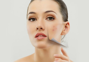 How to remove acne or pimple marks or drak spots at home? ~ Fashion Trends, Fashion Blogs, Beauty Tips, Style, Dresses, Accessories | Fashion Of Indian | Scoop.it