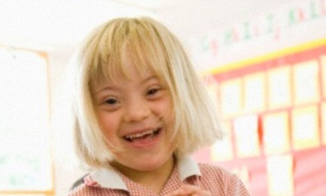 Scientists 'switch off' the extra chromosome that causes Down's Syndrome   leapmind   Scoop.it