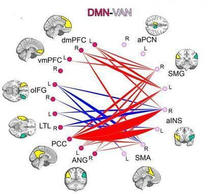 Slow to mature, quick to distract: ADHD study finds slower development of neural connections | Executive Function and technology | Scoop.it