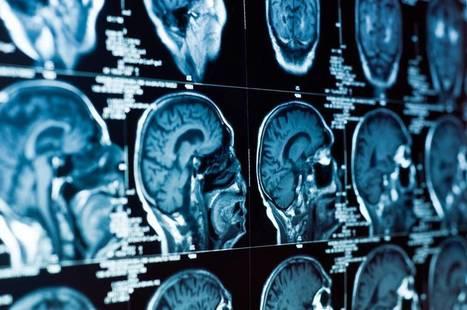 Is Addiction a Brain Disease?   The Fix   katwekera ^ namba 8 baibe   Scoop.it