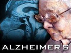 Will We Cure Alzheimer's? | Healthcare Continuing Education | Scoop.it