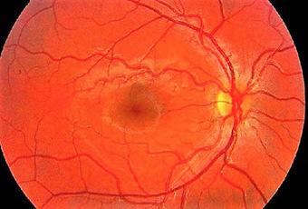 Que es daltonismo hipertensión ocular