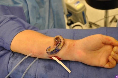 Eve's Rib: Woman Successfully Grows Ear from Arm | DigitAG& journal | Scoop.it