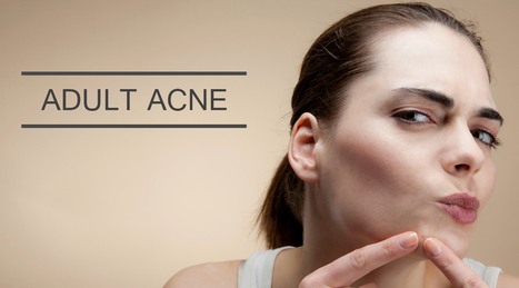 Fable Concerning Adult Acne