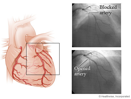 Nonemergency PCI (angioplasty) at Hospitals with or without On-Site Cardiac Surgery | Heart and Vascular Health | Scoop.it