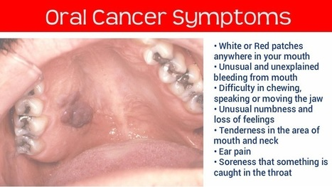 Oral cancer symptoms and pictures — img 15