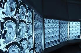 Aplicaciones docentes de las TIC para el desarrollo de recursos didácticos en Radiología   Create, Innovate & Evaluate in Higher Education   Scoop.it