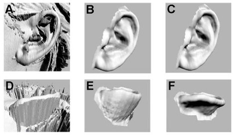 3D-printed ears that look and act like the real thing | KurzweilAI | Longevity science | Scoop.it