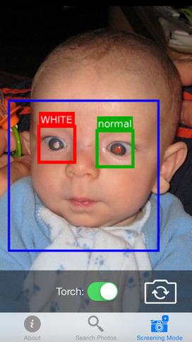 New app scours baby pictures for eye health risks | mobihealthnews | mHealth- Advances, Knowledge and Patient Engagement | Scoop.it