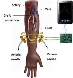 Wireless device powers implanted blood-pressure sensor, eliminating batteries   KurzweilAI   Longevity science   Scoop.it