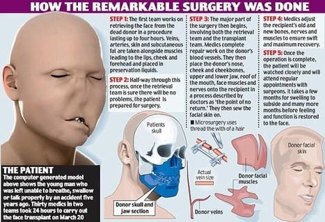 Surgeons in Poland perform first life-saving face transplant on man, 33, who ... - Daily Mail | Organ Donation & Transplant Matters Resources | Scoop.it