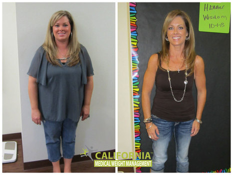Cmwm Cost El Paso Calmwm Weight Loss Program