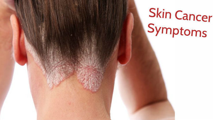 Identify Skin Cancer Symptoms At Very First Sta