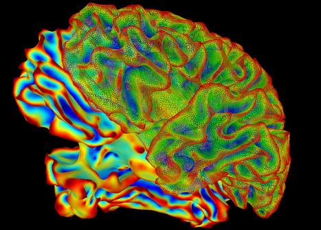 SumaLateral Whole Brain Image | Social Neuroscience Advances | Scoop.it