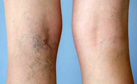 Echoez Of Health Recommends: 19 Natural Remedies For Varicose Veins | Echoez Of Health | Scoop.it