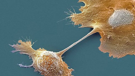 Pancreatic cancer breakthrough: scientists turn cancer cells into normal cells | Tissue  and organ Engineering and Manufacturing | Scoop.it