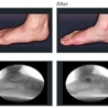 Bunions, Hammertoes, Flat feet & Other Foot Problems