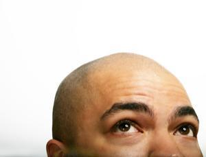 Why haven't bald men gone extinct?   Geek Chic   Scoop.it