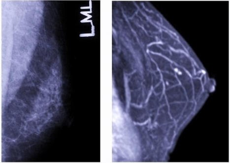 Scientists Create Breast Cancer Prognosis Predictor - Medical Daily | Robot and machine learning | Scoop.it