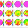 Neurofeedback Brain Mapping