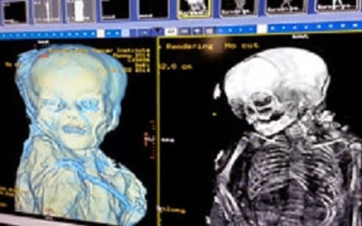 Results from CT scan of South American mummy revealed | The Archaeology News Network | Kiosque du monde : Amériques | Scoop.it