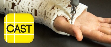 #Casts – 3D Printed Casts Which can be Signed via Twitter & Facebook | 3D and 4D PRINTING | Scoop.it