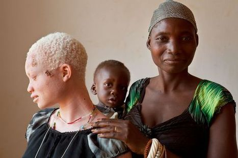 Pictures: Inside the Lives of Albinos in Tanzania | Politics economics and society | Scoop.it