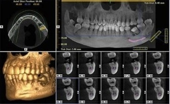 Cone Beam Computed Tomography (CBCT) - Balancing Benefits and Risks - WebDental   Dental Implants   Scoop.it