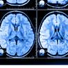 experimental neuropscyhology