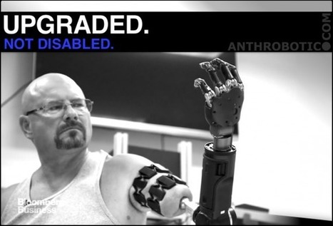 TRANSHUMANISM TEST PILOTS: Robotic Arm Connected Directly to Skeleton (VIDEO) | AI, NBI, Robotics & Cybernetics & Android Stuff | Scoop.it