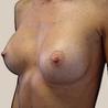 breast augmentation Lebanon