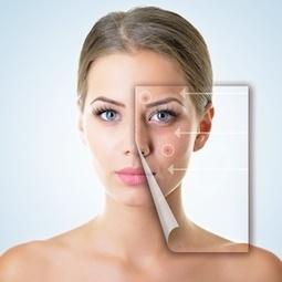 Le face-mapping pour résoudre vos problèmes d'acné   À Votre Santé   Scoop.it