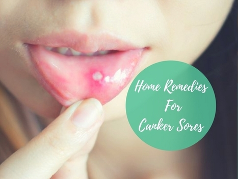 Home Remedies For Canker Sore In Health Scoop It
