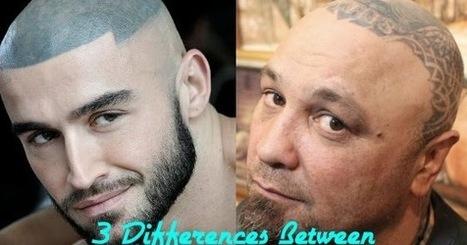 Hair Tattoo Scalp Micropigmentation In Scalp Micropigmentation