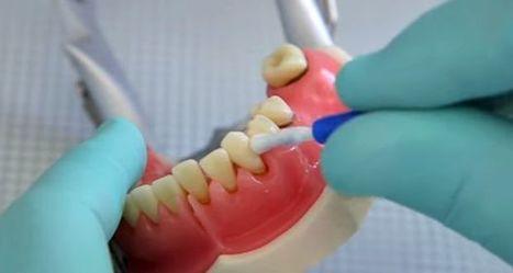 PerioTwist™ – new innovative Canadian dental product | Dental Implants | Scoop.it