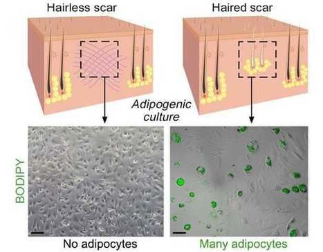 Scar-free wound healing could be on its way | Longevity science | Scoop.it