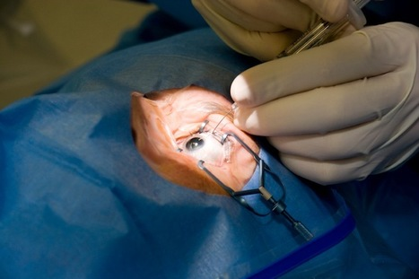 See This: Doctor to Live Stream Eye Surgery Thursday | Healthcare Innovation | Scoop.it