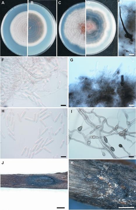 Mycotaxon: Characterisation and neotypification of Gloeosporium kaki Hori as Colletotrichum horii nom. nov. | fungi bacteria publications | Scoop.it