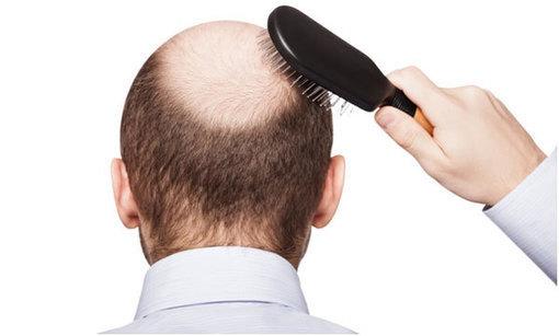 3 Best Hair Loss Treatments 2015 Cliffy S Bea