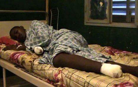 Prime immagini di vittime di amputazione secondo la charia nel Nord-Mali   Au Mali entre Développement et Guerre   Scoop.it