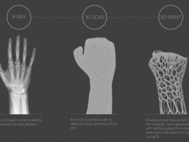 Don't Break Your Arm, But If You Break Your Arm Get This Sweet 3D Printed Cast | FabLabs & Open Design | Scoop.it