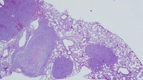 Científicos del CSIC identifican un componente de las células que impide la metástasis   About Biochemistry   Scoop.it