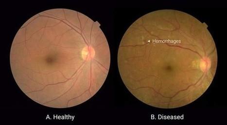 Google crea algoritmo de aprendizaje profundo para el diagnóstico de la retinopatía diabética | Ingeniería Biomédica | Scoop.it