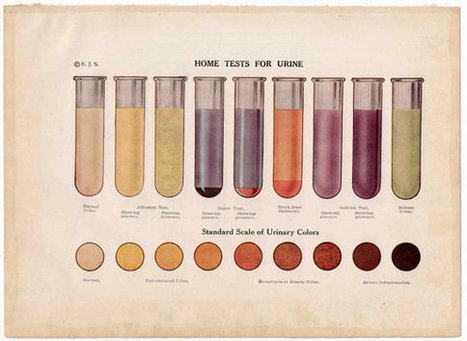 1912  - urinalysis print | Antiques & Vintage Collectibles | Scoop.it