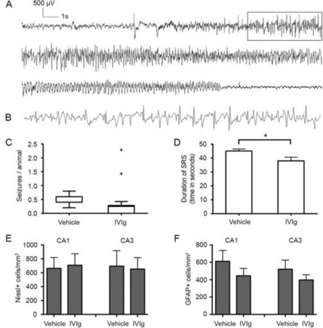 Disease-modifying effect of intravenous immunoglobulin in an experimental model of epilepsy | Immunology and Biotherapies | Scoop.it