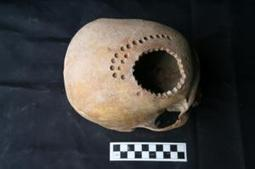 Ancient cranial surgery: Practice of drilling holes in the cranium that dates back thousands of years | Ancient Health & Medicine | Scoop.it