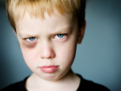 Injuries from child abuse on the rise, study finds | Child Welfare - Child Abuse: Protecting Our Children | Scoop.it