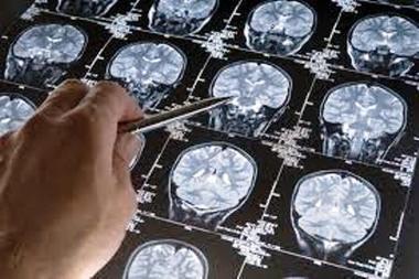 Los ácidos omega-3 retrasan el envejecimiento del cerebro   Cosas del cerebro   Psicosinapsis - Neuropsychology   Scoop.it
